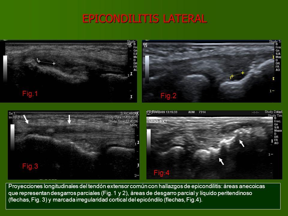 EPICONDILITIS LATERAL Proyecciones longitudinales con doppler color y power doppler del tendón extensor común con hallazgos de epicondilitis: prominente hipervascularización por neovascularización (Fig.