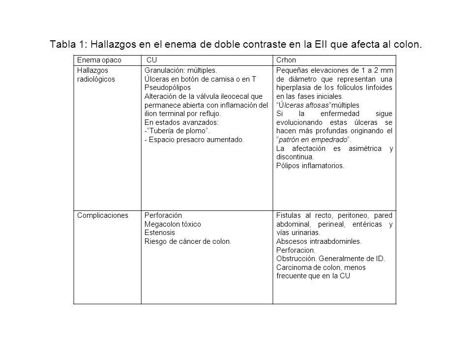 Tabla 2: Hallazgos en el TC en la EII que afecta al colon.