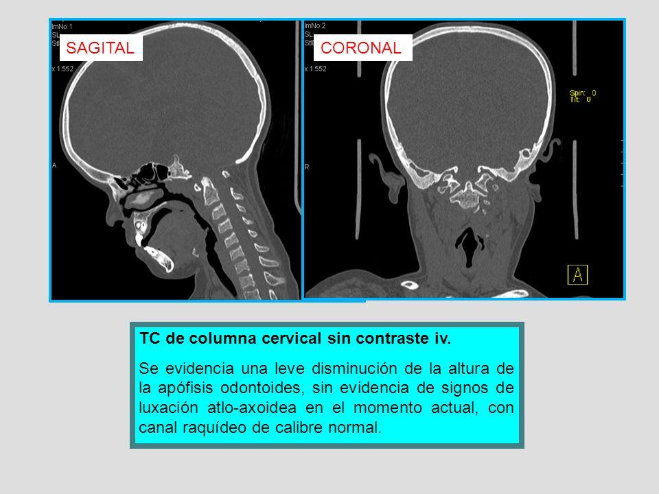 TC de columna cervical sin contraste iv. Se evidencia una leve disminución de la altura de la apófisis odontoides, sin evidencia de signos de luxación
