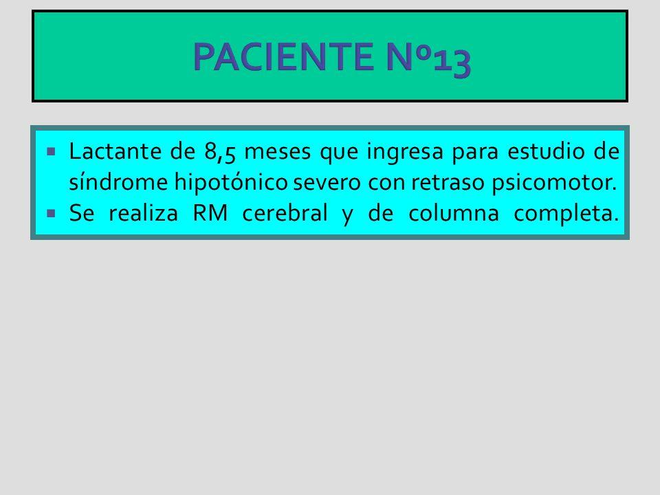 PACIENTE Nº13 Lactante de 8,5 meses que ingresa para estudio de síndrome hipotónico severo con retraso psicomotor. Se realiza RM cerebral y de columna