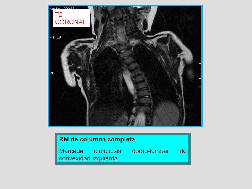 RM de columna completa. Marcada escoliosis dorso-lumbar de convexidad izquierda. T2 CORONAL