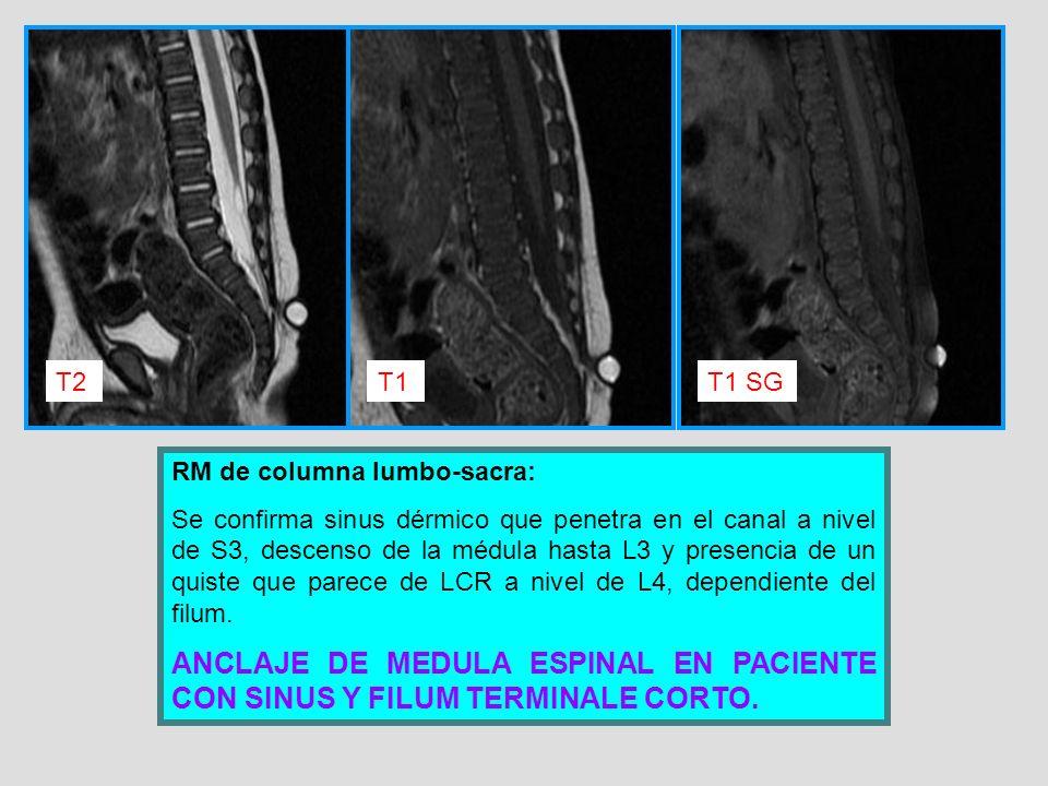 RM de columna lumbo-sacra: Se confirma sinus dérmico que penetra en el canal a nivel de S3, descenso de la médula hasta L3 y presencia de un quiste qu