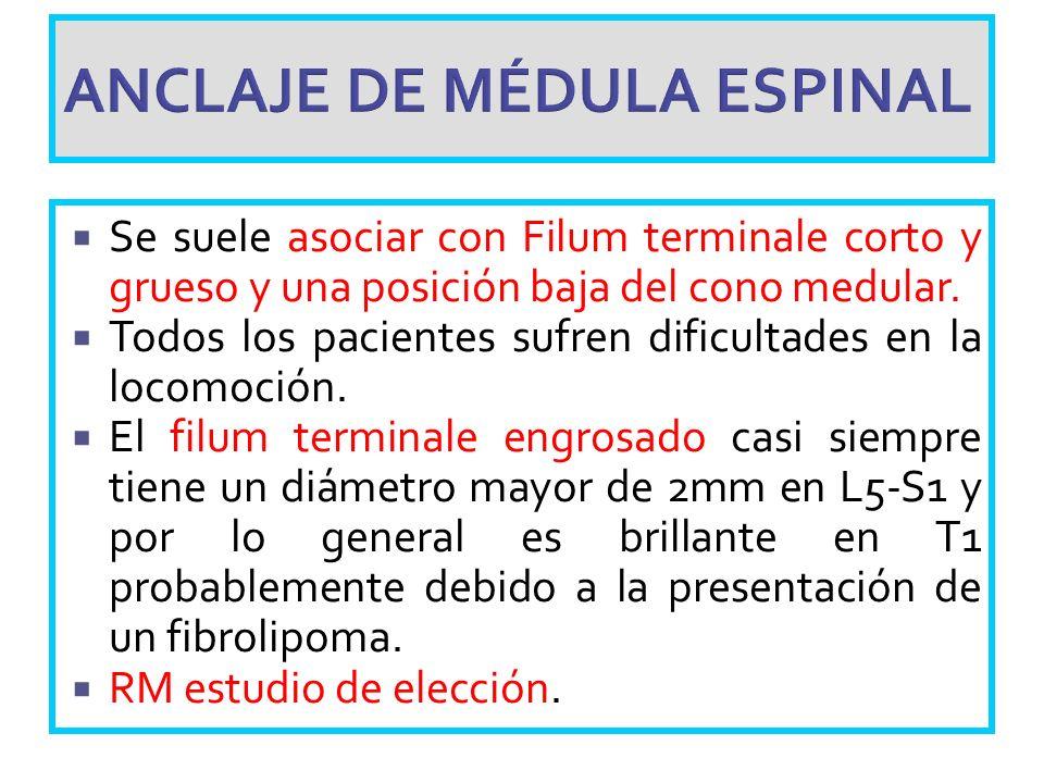 ANCLAJE DE MÉDULA ESPINAL Se suele asociar con Filum terminale corto y grueso y una posición baja del cono medular. Todos los pacientes sufren dificul