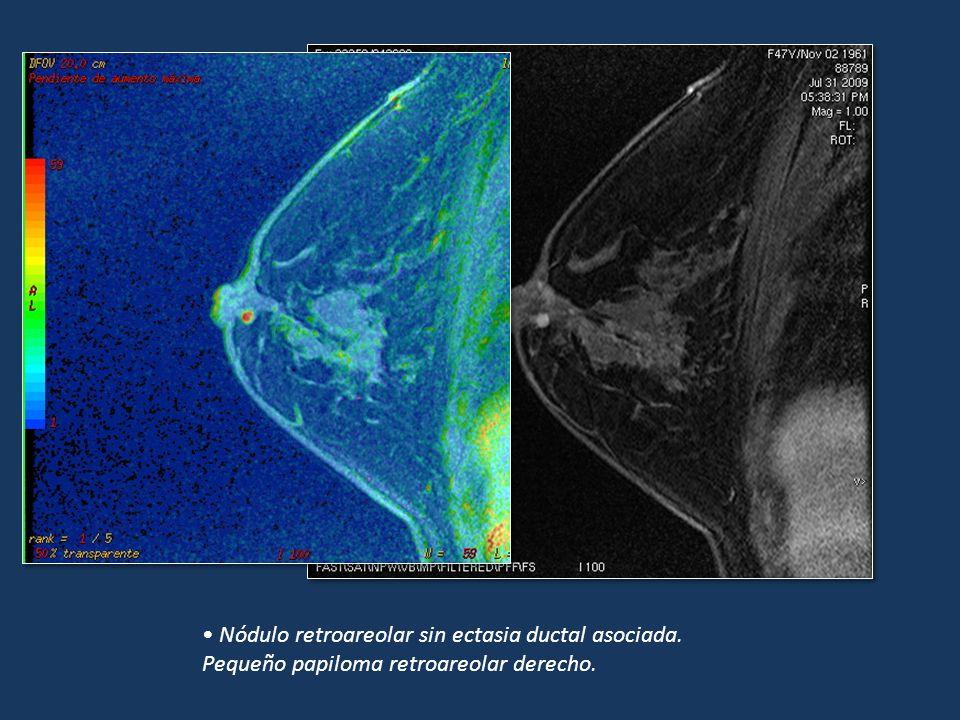 Nódulo retroareolar sin ectasia ductal asociada. Pequeño papiloma retroareolar derecho.