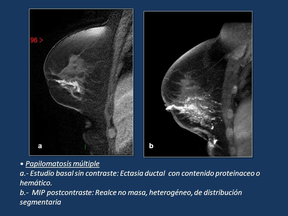 Papilomatosis múltiple a.- Estudio basal sin contraste: Ectasia ductal con contenido proteinaceo o hemático. b.- MIP postcontraste: Realce no masa, he