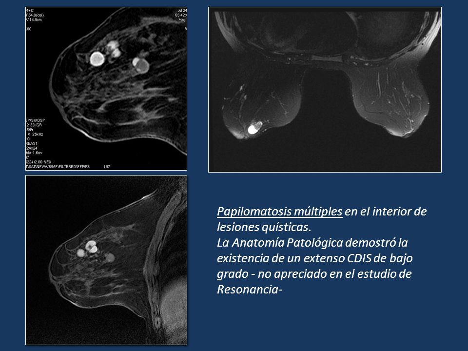 Papilomatosis múltiples en el interior de lesiones quísticas. La Anatomía Patológica demostró la existencia de un extenso CDIS de bajo grado - no apre