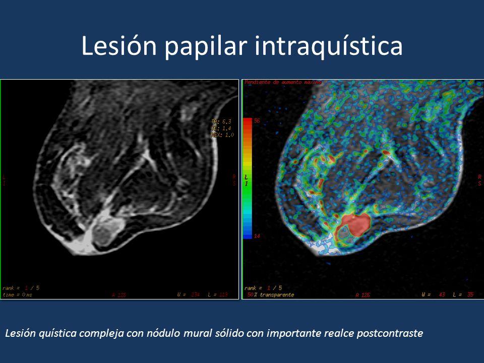 Lesión papilar intraquística Lesión quística compleja con nódulo mural sólido con importante realce postcontraste