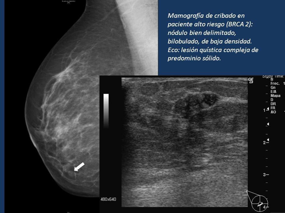 Mamografía de cribado en paciente alto riesgo (BRCA 2): nódulo bien delimitado, bilobulado, de baja densidad. Eco: lesión quística compleja de predomi