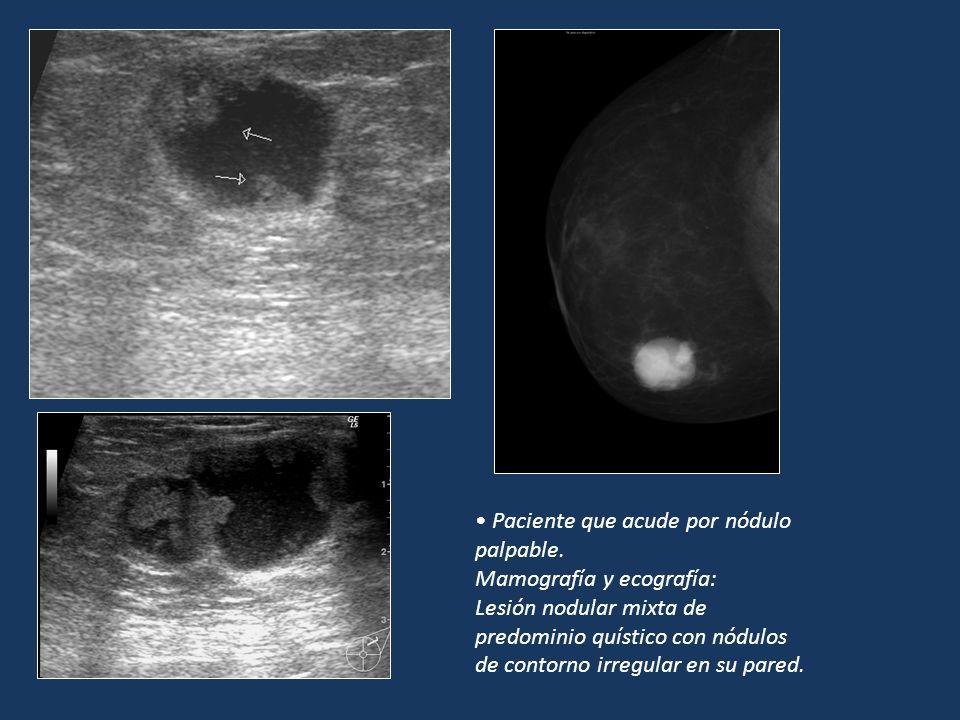 Paciente que acude por nódulo palpable. Mamografía y ecografía: Lesión nodular mixta de predominio quístico con nódulos de contorno irregular en su pa