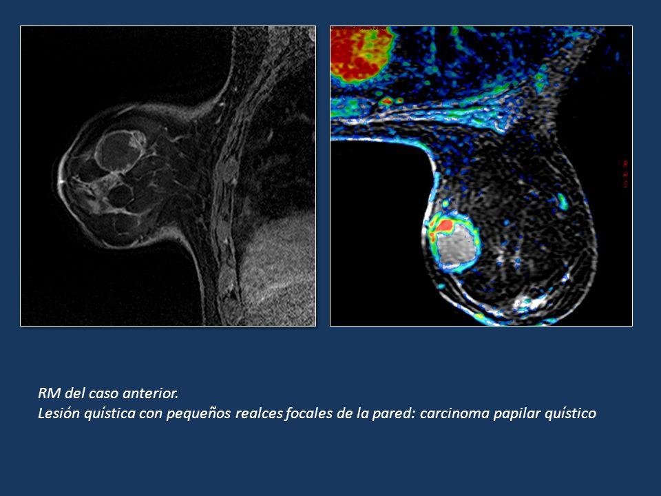 RM del caso anterior. Lesión quística con pequeños realces focales de la pared: carcinoma papilar quístico