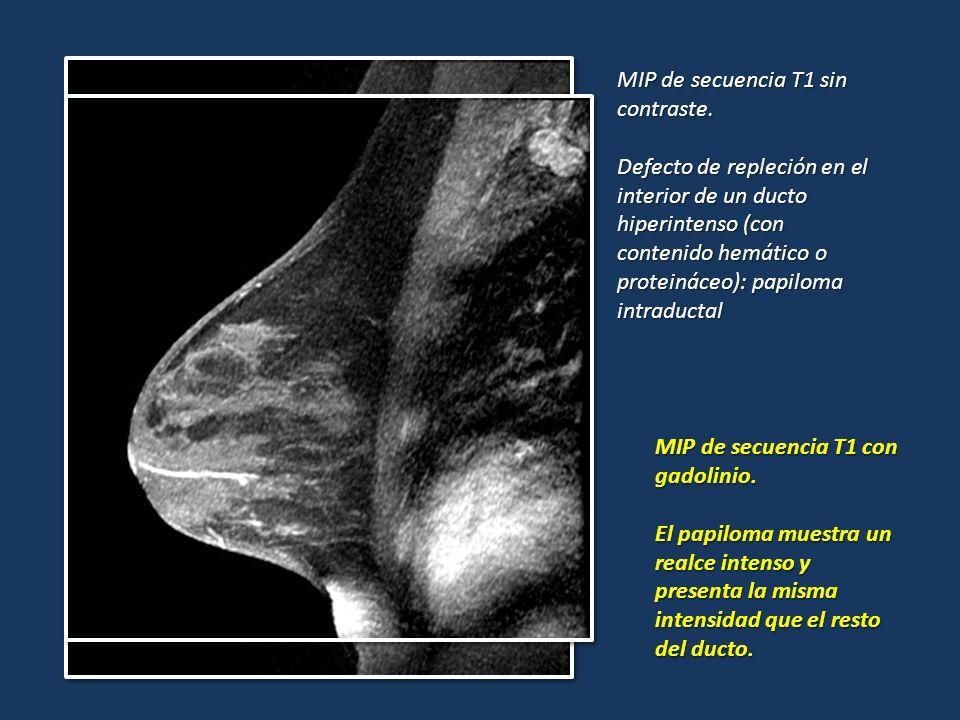 MIP de secuencia T1 sin contraste. Defecto de repleción en el interior de un ducto hiperintenso (con contenido hemático o proteináceo): papiloma intra