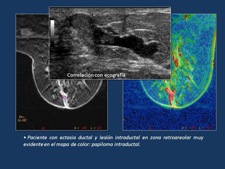 Paciente con ectasia ductal y lesión intraductal en zona retroareolar muy evidente en el mapa de color: papiloma intraductal. Correlación con ecografí