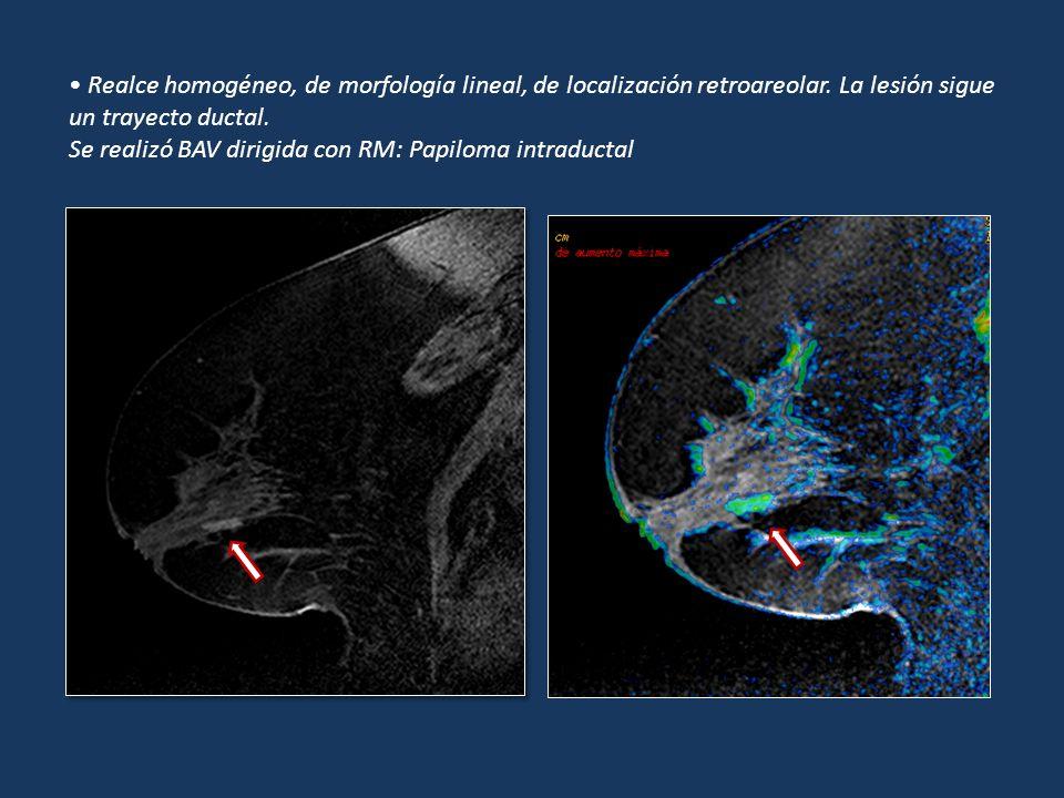 Realce homogéneo, de morfología lineal, de localización retroareolar. La lesión sigue un trayecto ductal. Se realizó BAV dirigida con RM: Papiloma int