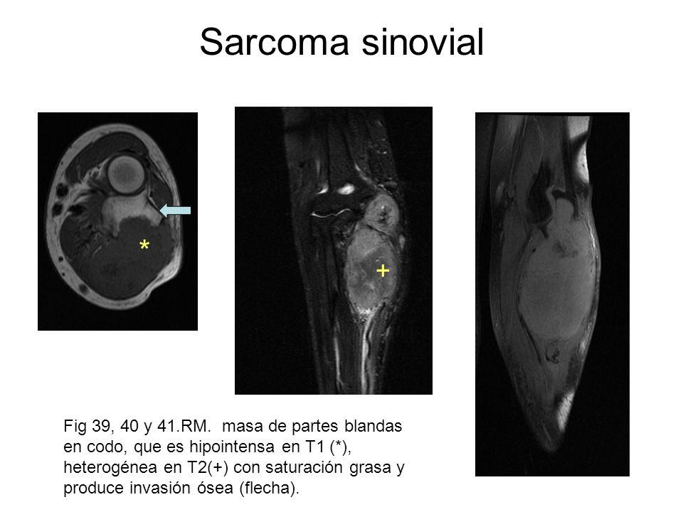 Sarcoma sinovial Fig 39, 40 y 41.RM. masa de partes blandas en codo, que es hipointensa en T1 (*), heterogénea en T2(+) con saturación grasa y produce