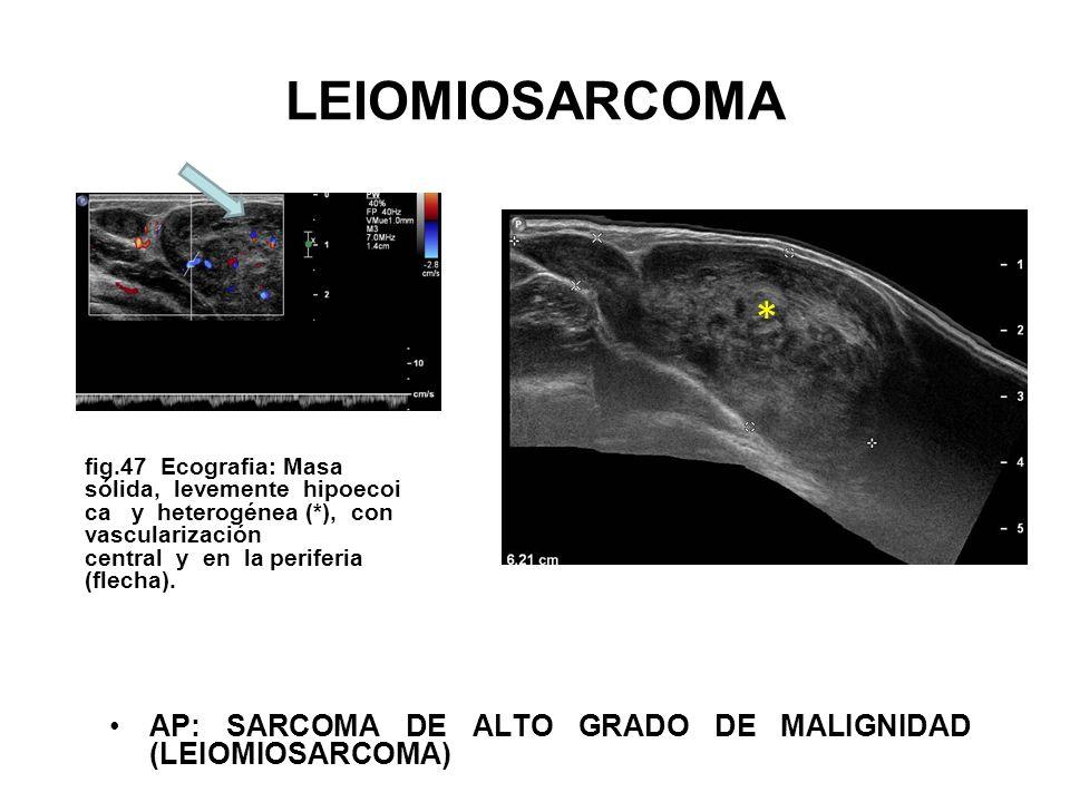 LEIOMIOSARCOMA fig.47 Ecografia: Masa sólida, levemente hipoecoi ca y heterogénea (*), con vascularización central y en la periferia (flecha). AP: SAR