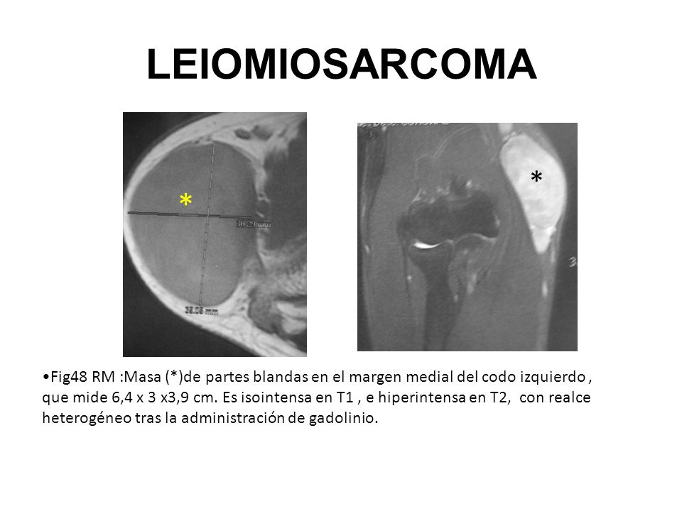 LEIOMIOSARCOMA Fig48 RM :Masa (*)de partes blandas en el margen medial del codo izquierdo, que mide 6,4 x 3 x3,9 cm. Es isointensa en T1, e hiperinten