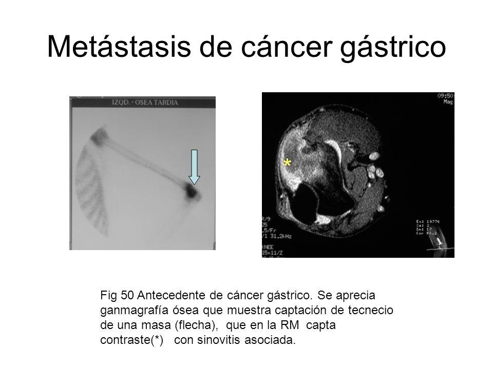 Metástasis de cáncer gástrico Fig 50 Antecedente de cáncer gástrico. Se aprecia ganmagrafía ósea que muestra captación de tecnecio de una masa (flecha