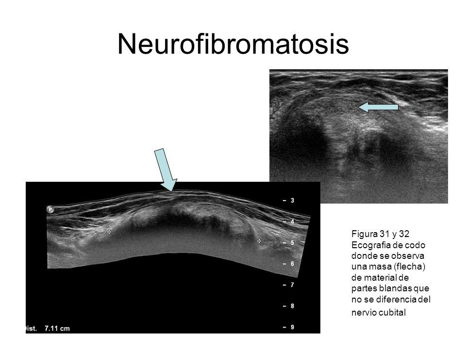 Neurofibromatosis Figura 31 y 32 Ecografia de codo donde se observa una masa (flecha) de material de partes blandas que no se diferencia del nervio cu