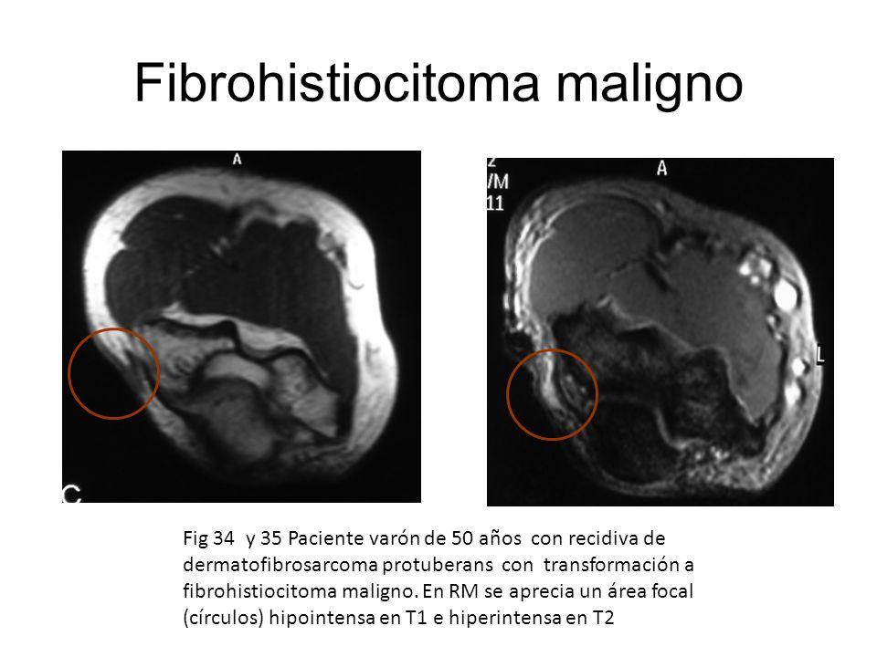 Fig 34 y 35 Paciente varón de 50 años con recidiva de dermatofibrosarcoma protuberans con transformación a fibrohistiocitoma maligno. En RM se aprecia