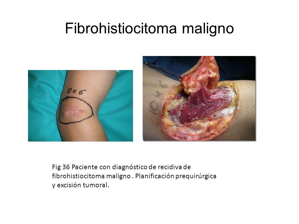 Fig 36 Paciente con diagnóstico de recidiva de fibrohistiocitoma maligno. Planificación prequirúrgica y excisión tumoral.