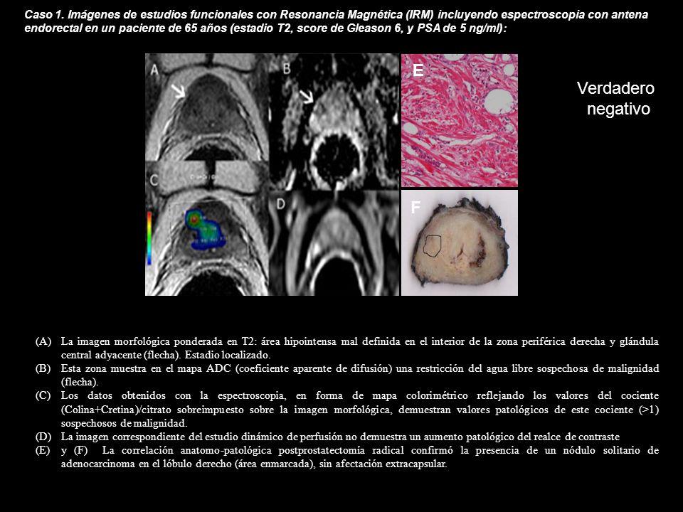 (A)La imagen morfológica ponderada en T2: área hipointensa mal definida en el interior de la zona periférica derecha y glándula central adyacente (fle