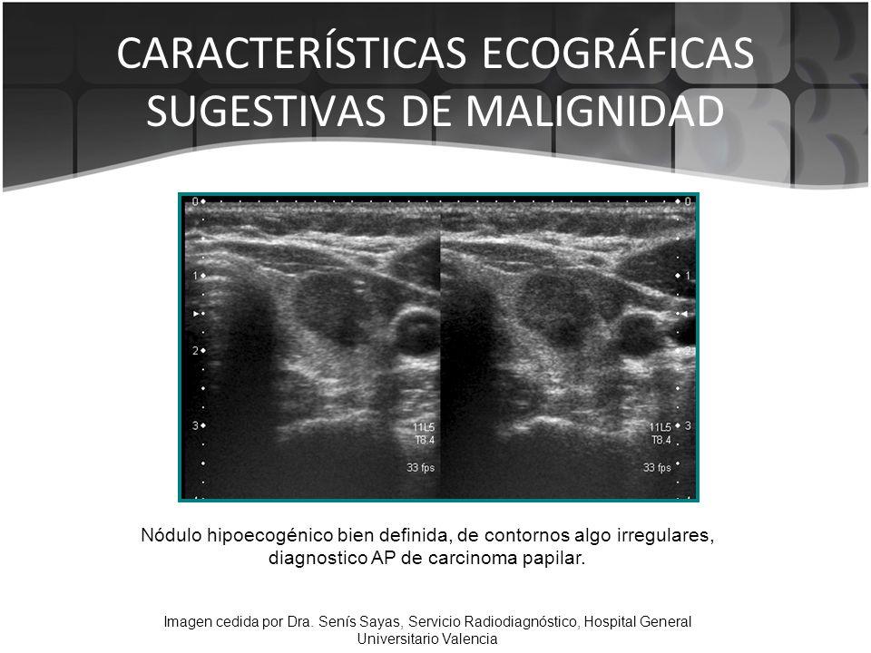Nódulo hipoecogénico bien definida, de contornos algo irregulares, diagnostico AP de carcinoma papilar. Imagen cedida por Dra. Senís Sayas, Servicio R