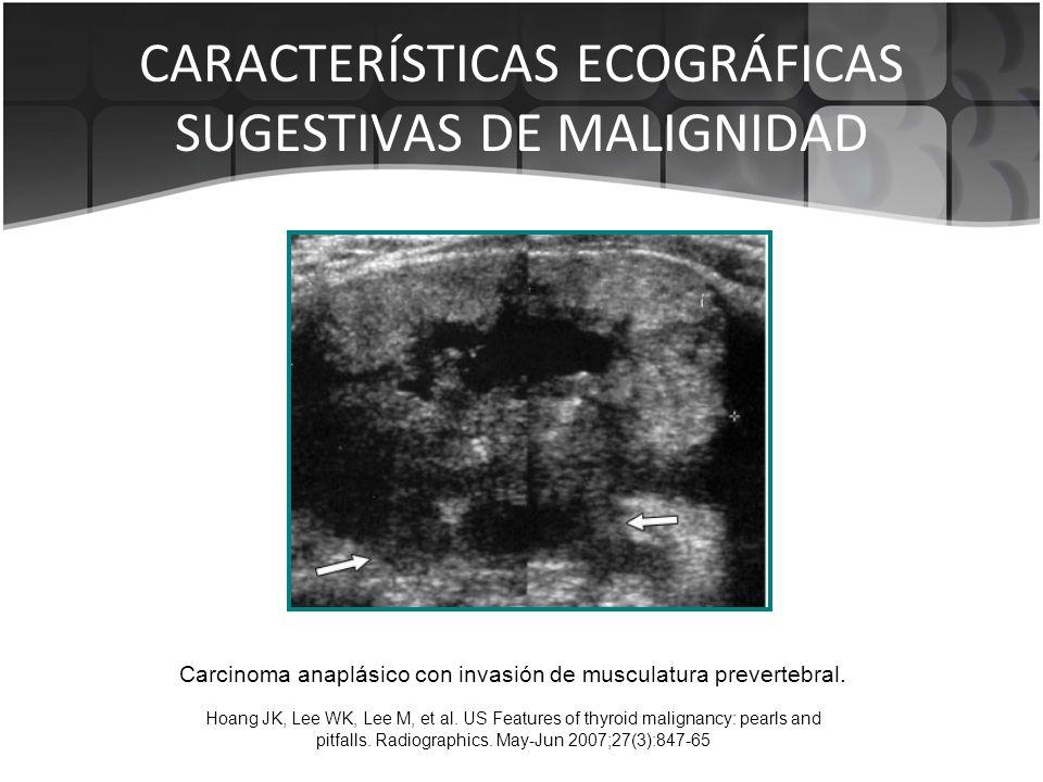 CARACTERÍSTICAS ECOGRÁFICAS SUGESTIVAS DE MALIGNIDAD Carcinoma anaplásico con invasión de musculatura prevertebral. Hoang JK, Lee WK, Lee M, et al. US