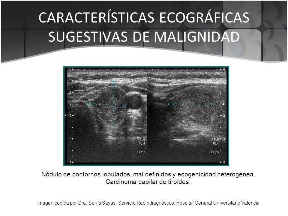 Nódulo de contornos lobulados, mal definidos y ecogenicidad heterogénea. Carcinoma papilar de tiroides. Imagen cedida por Dra. Senís Sayas, Servicio R
