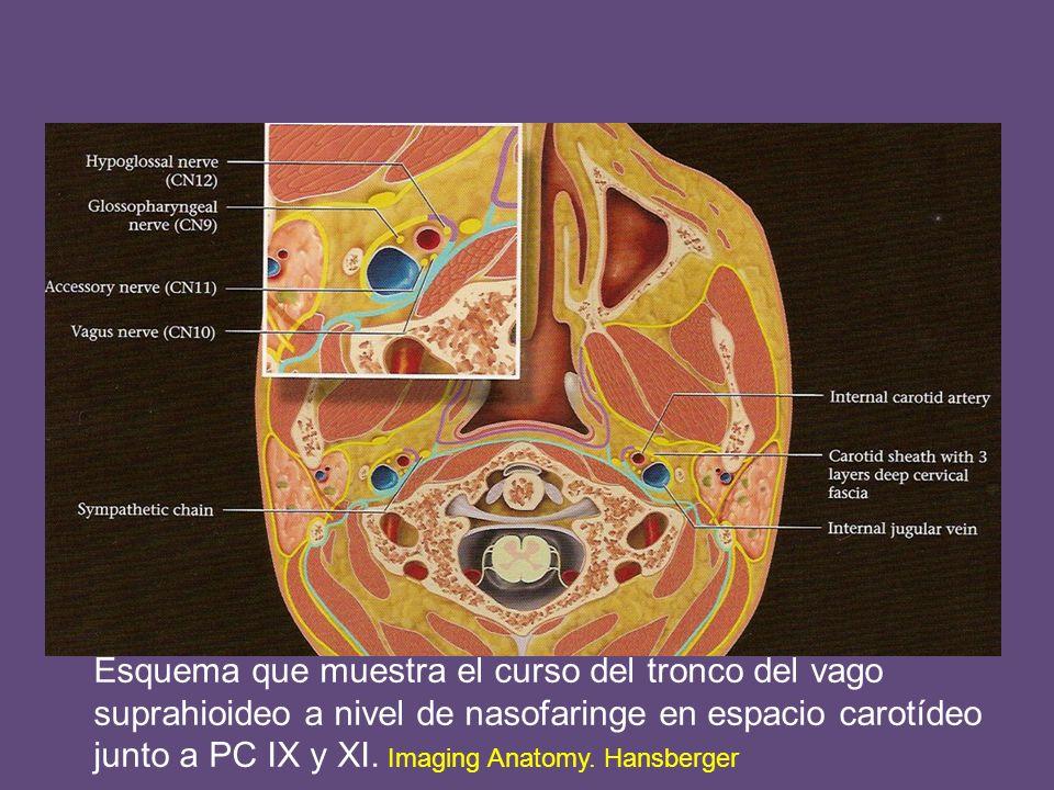 Esquema que muestra el curso del tronco del vago suprahioideo a nivel de nasofaringe en espacio carotídeo junto a PC IX y XI.