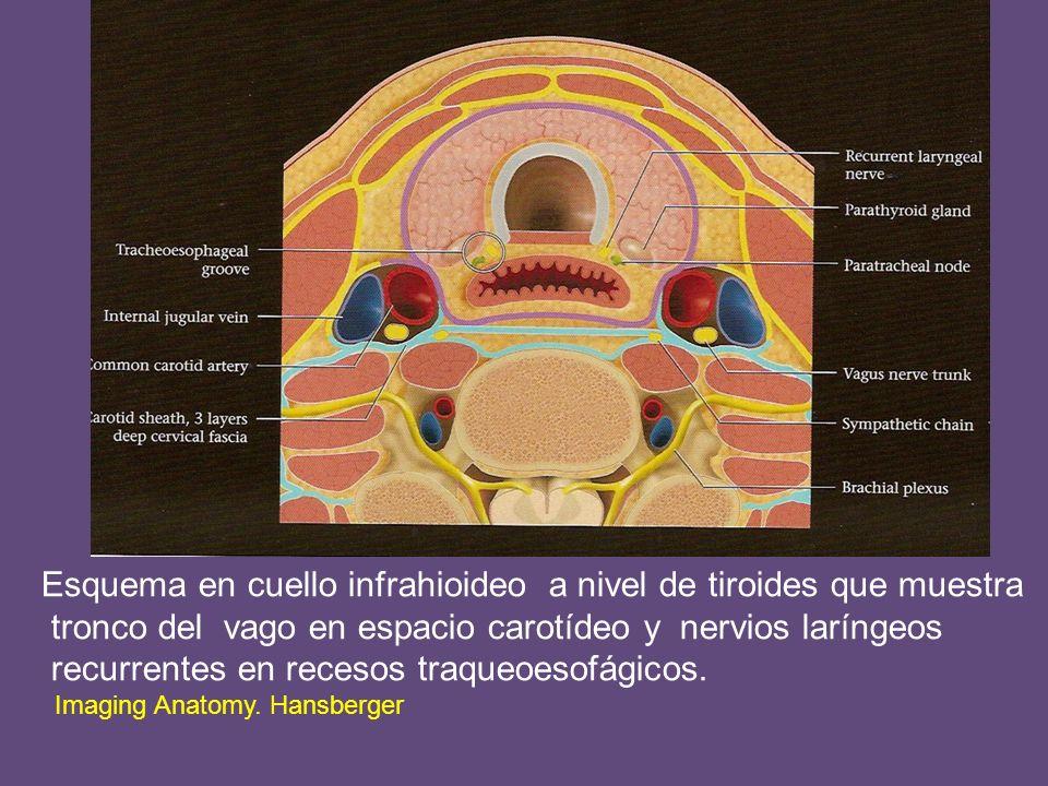 Esquema en cuello infrahioideo a nivel de tiroides que muestra tronco del vago en espacio carotídeo y nervios laríngeos recurrentes en recesos traqueoesofágicos.