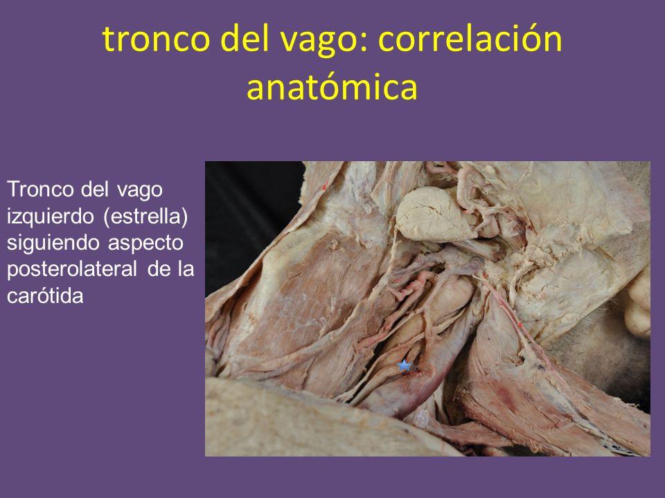 tronco del vago: correlación anatómica Tronco del vago izquierdo (estrella) siguiendo aspecto posterolateral de la carótida