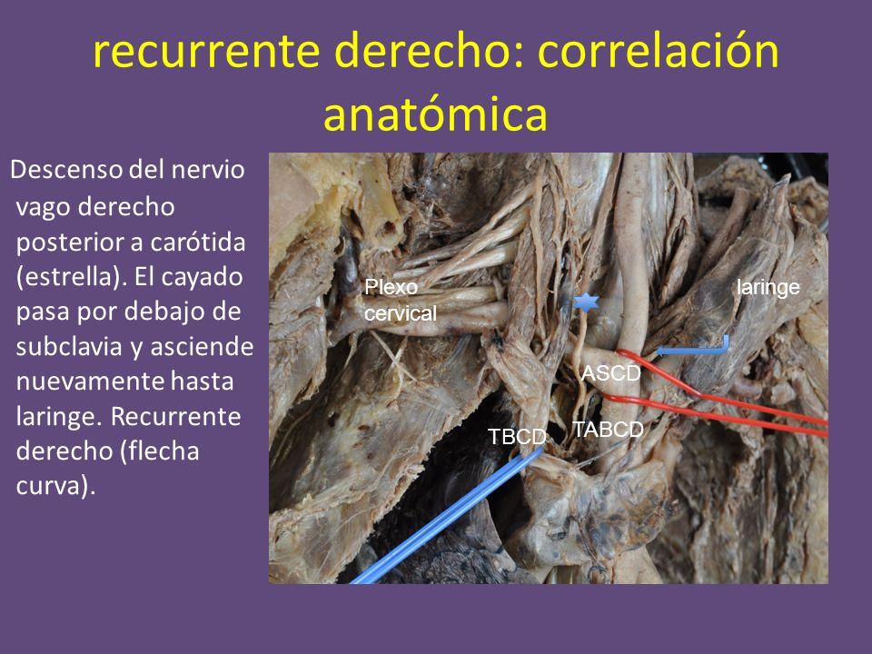 recurrente derecho: correlación anatómica Descenso del nervio vago derecho posterior a carótida (estrella).