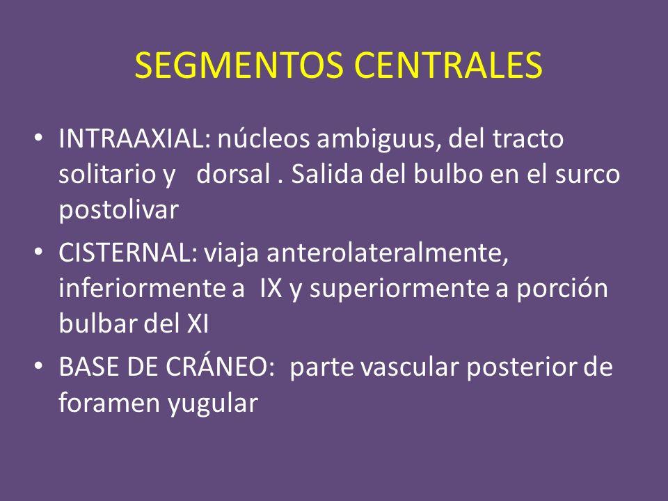Esquema axial a nivel de bulbo con principales núcleos de origen del nervio vago.