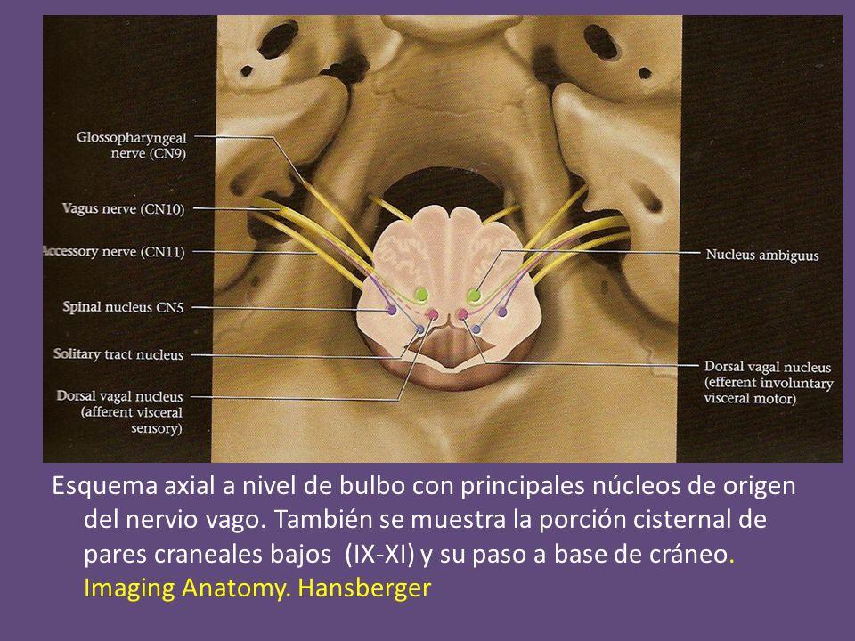 recurrente izquierdo Trayecto de vago anterior a arco aórtico, salida del nervio recurrente izquierdo (flechas) con recorrido en ventana aortopulmonar que posteriormente asciende paralelo a la tráquea aortaaorta TBCI A pulmonar tiroidesASCD