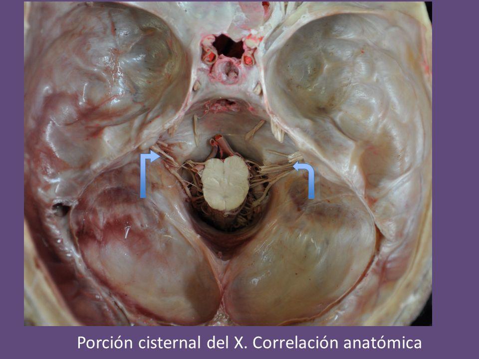 Porción cisternal del X. Correlación anatómica