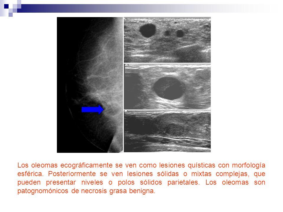 Los oleomas ecográficamente se ven como lesiones quísticas con morfología esférica. Posteriormente se ven lesiones sólidas o mixtas complejas, que pue