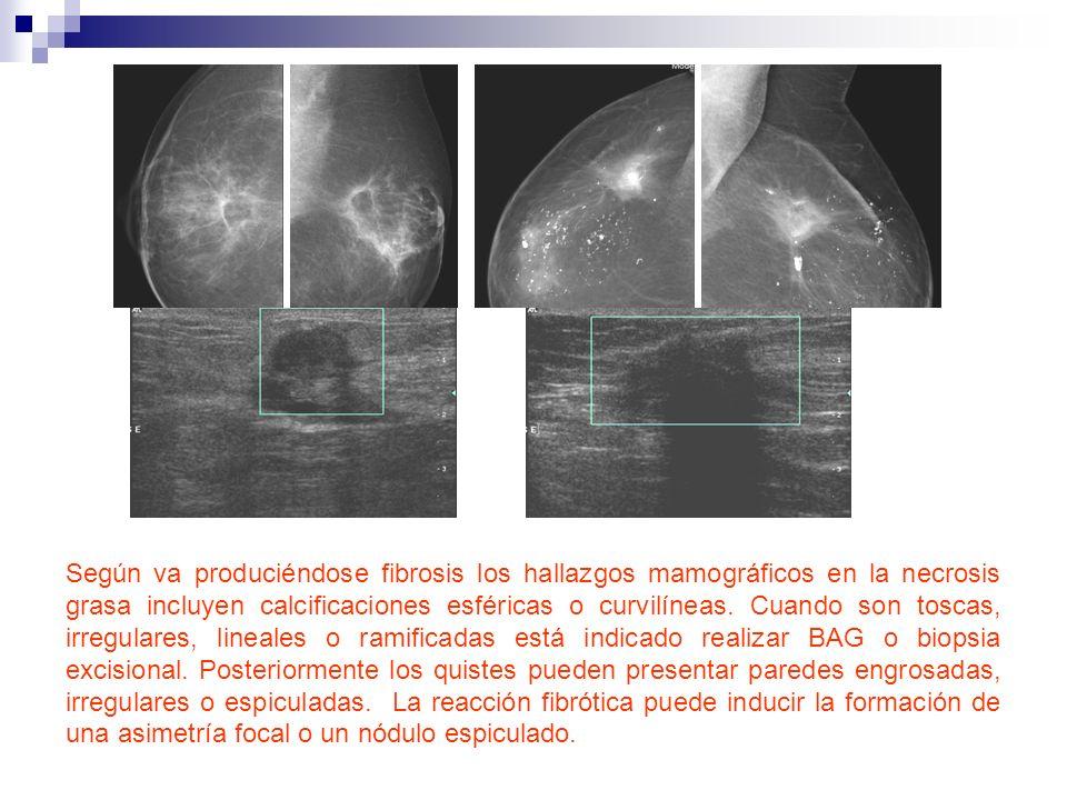 Según va produciéndose fibrosis los hallazgos mamográficos en la necrosis grasa incluyen calcificaciones esféricas o curvilíneas. Cuando son toscas, i