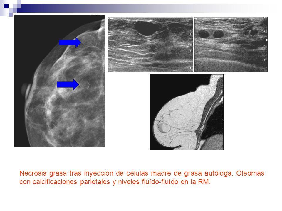 Necrosis grasa tras inyección de células madre de grasa autóloga. Oleomas con calcificaciones parietales y niveles fluído-fluído en la RM.