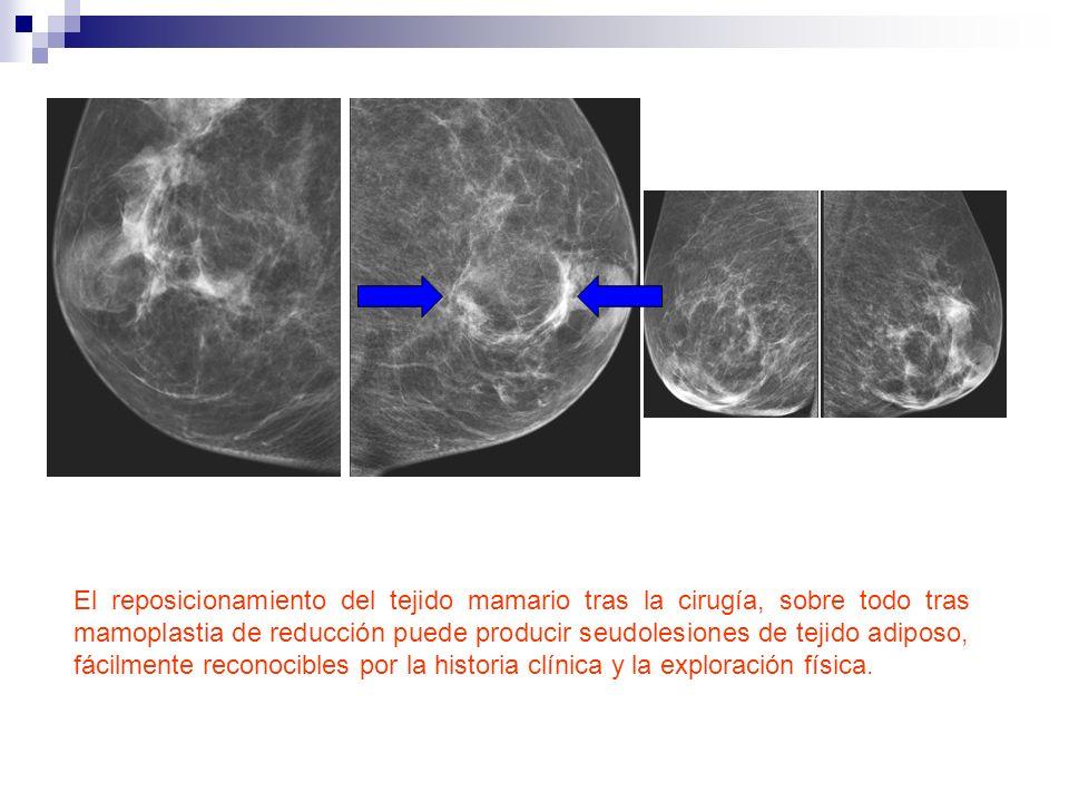El reposicionamiento del tejido mamario tras la cirugía, sobre todo tras mamoplastia de reducción puede producir seudolesiones de tejido adiposo, fáci
