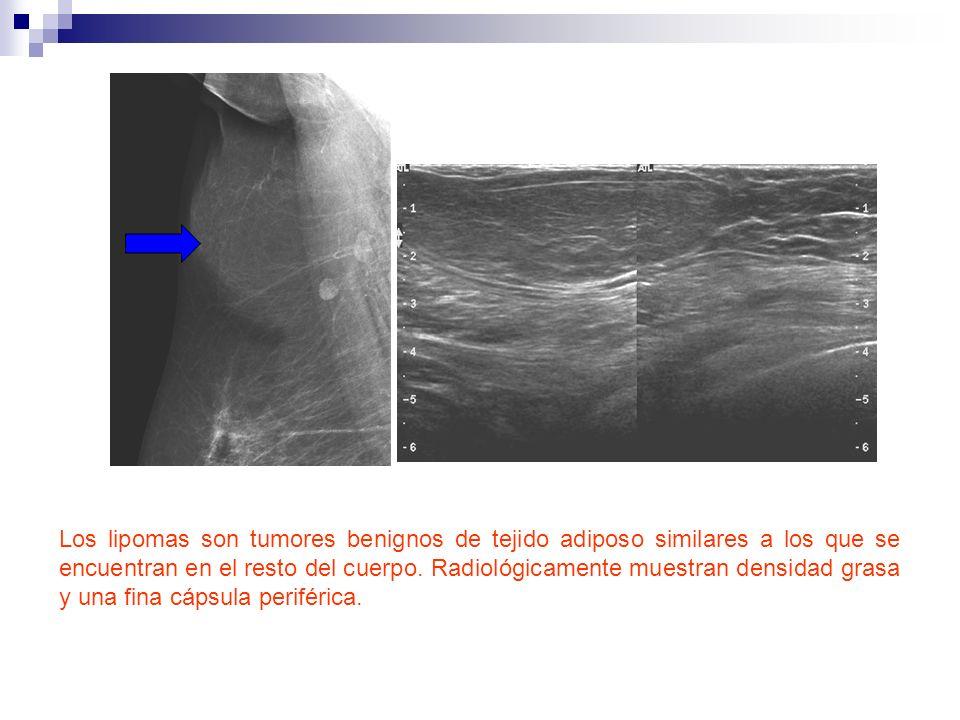 Los lipomas son tumores benignos de tejido adiposo similares a los que se encuentran en el resto del cuerpo. Radiológicamente muestran densidad grasa