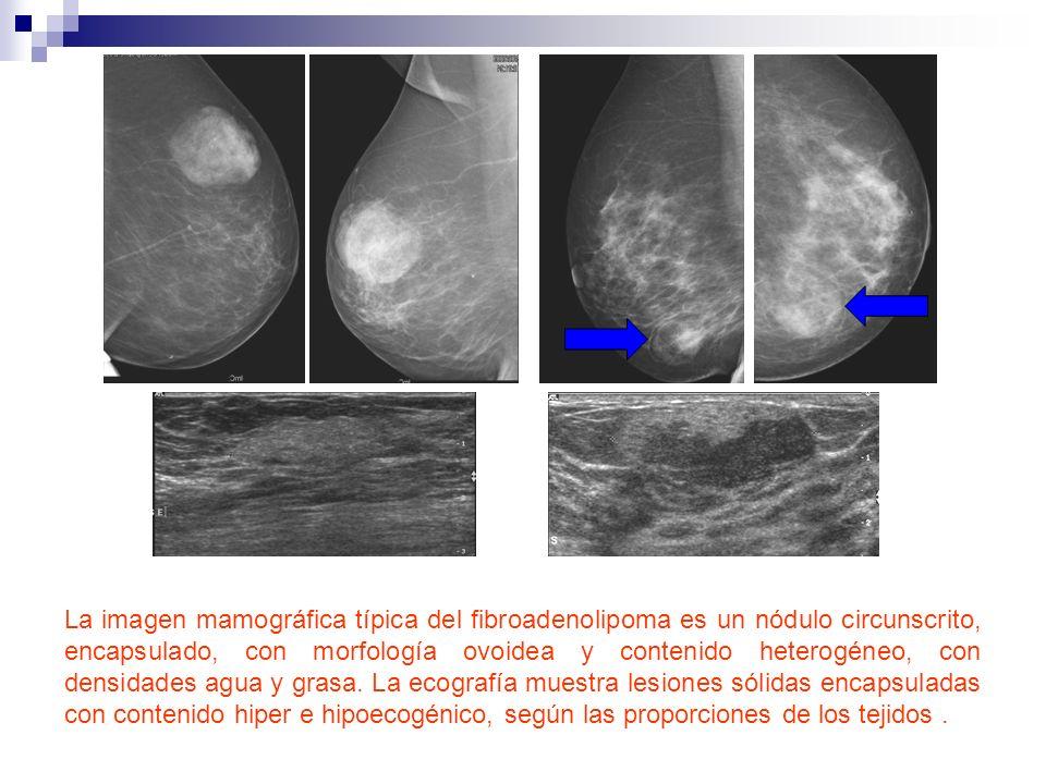 La imagen mamográfica típica del fibroadenolipoma es un nódulo circunscrito, encapsulado, con morfología ovoidea y contenido heterogéneo, con densidad