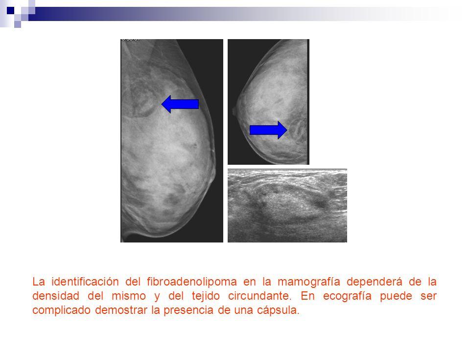 La identificación del fibroadenolipoma en la mamografía dependerá de la densidad del mismo y del tejido circundante. En ecografía puede ser complicado