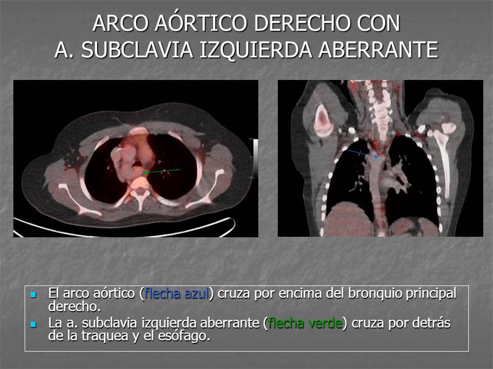 ARCO AÓRTICO DERECHO CON A. SUBCLAVIA IZQUIERDA ABERRANTE El arco aórtico (flecha azul) cruza por encima del bronquio principal derecho. El arco aórti