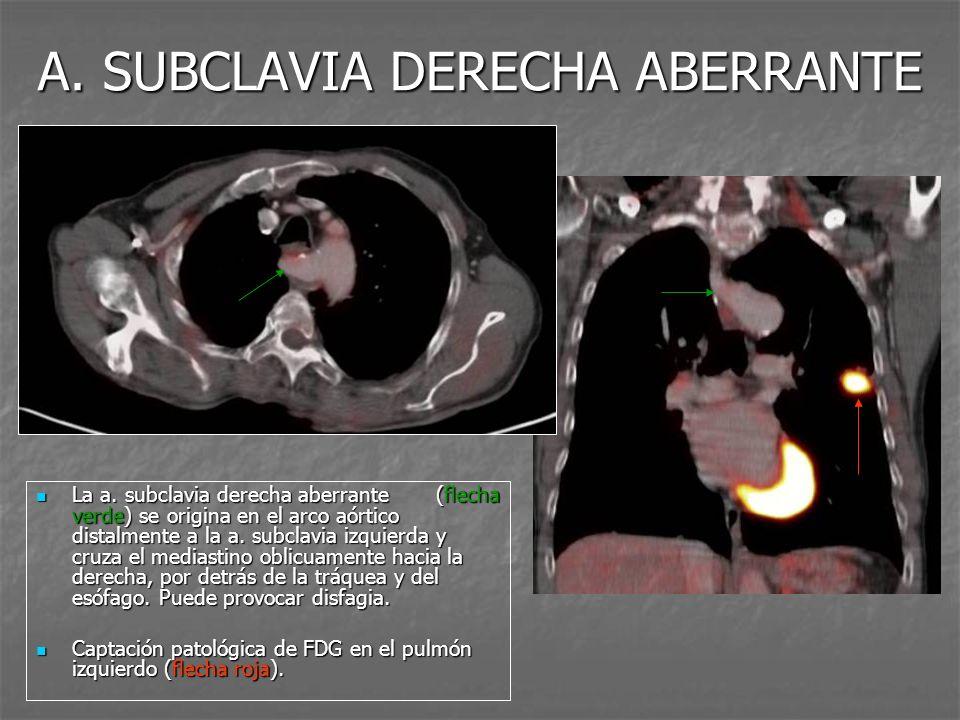 ORIGEN CONJUNTO DEL TBC Y LA ACCI El tronco braquiocefálico (flecha azul) y la carótida común izquierda (flecha verde) con un origen conjunto en el cayado aórtico.