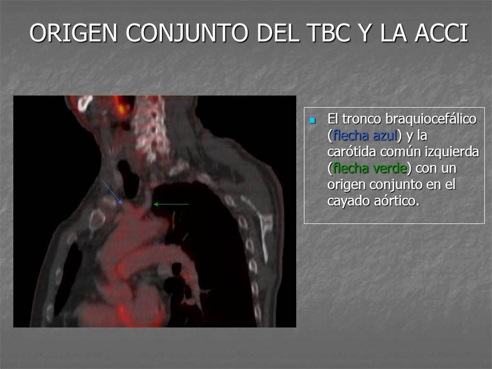 ORIGEN CONJUNTO DEL TBC Y LA ACCI El tronco braquiocefálico (flecha azul) y la carótida común izquierda (flecha verde) con un origen conjunto en el ca