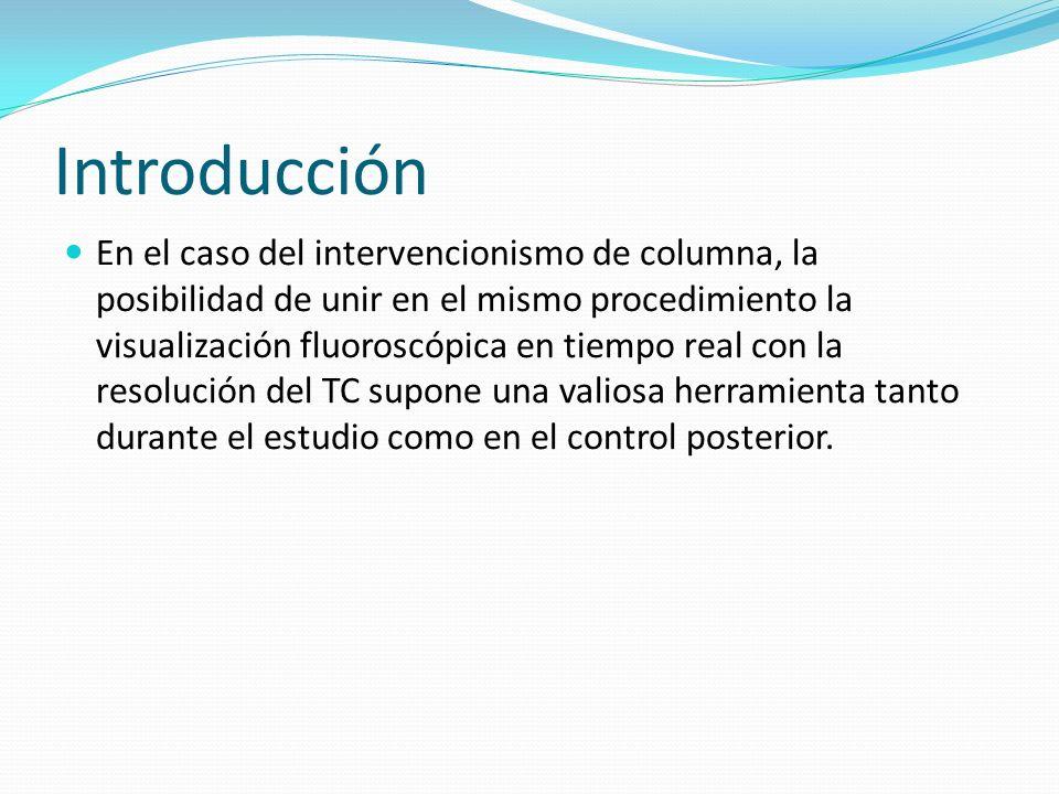 Introducción En el caso del intervencionismo de columna, la posibilidad de unir en el mismo procedimiento la visualización fluoroscópica en tiempo rea