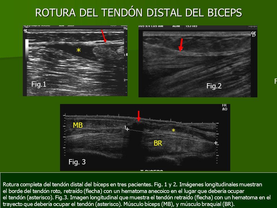 ROTURA DEL TENDÓN DISTAL DEL BICEPS Rotura completa del tendón distal del bíceps en tres pacientes. Fig. 1 y 2. Imágenes longitudinales muestran el bo
