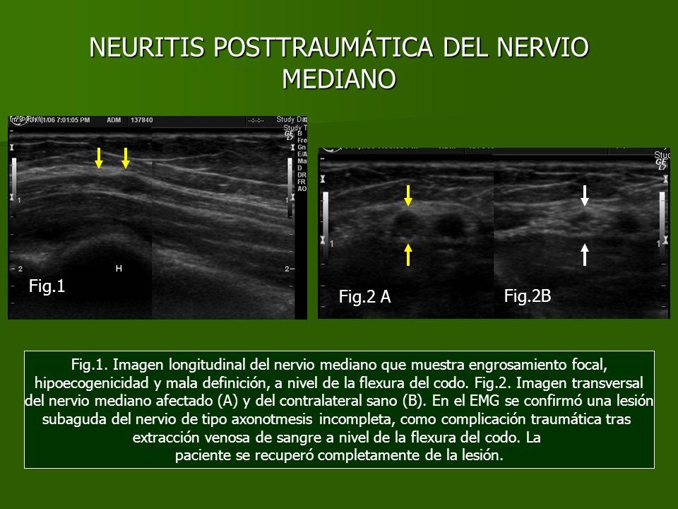 NEURITIS POSTTRAUMÁTICA DEL NERVIO MEDIANO Fig.1. Imagen longitudinal del nervio mediano que muestra engrosamiento focal, hipoecogenicidad y mala defi