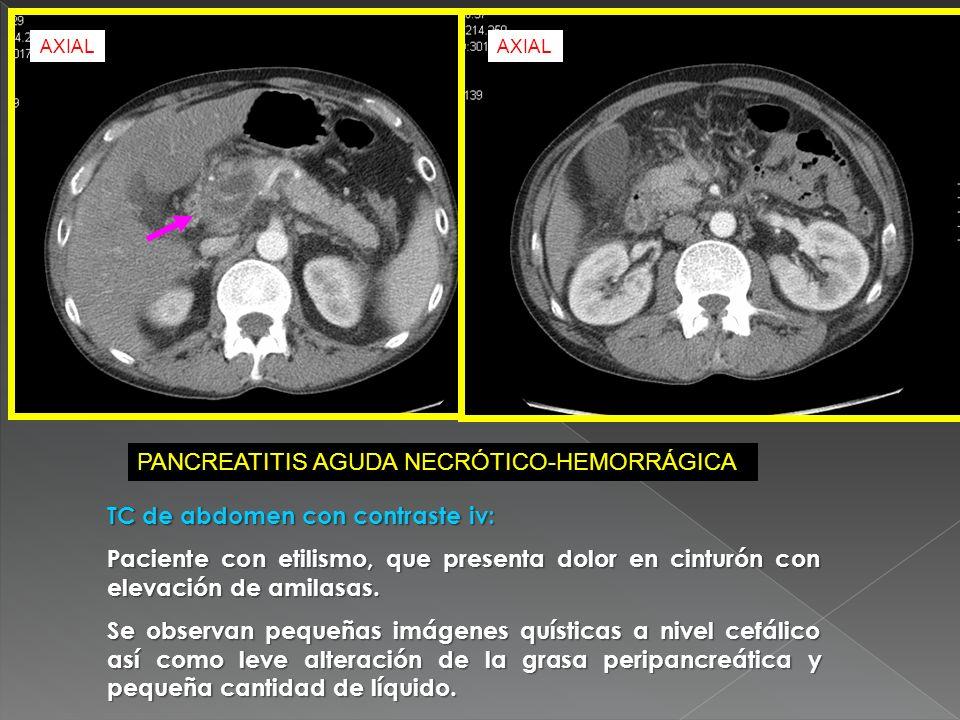 TC de abdomen con contraste iv: Paciente con etilismo, que presenta dolor en cinturón con elevación de amilasas. Se observan pequeñas imágenes quístic