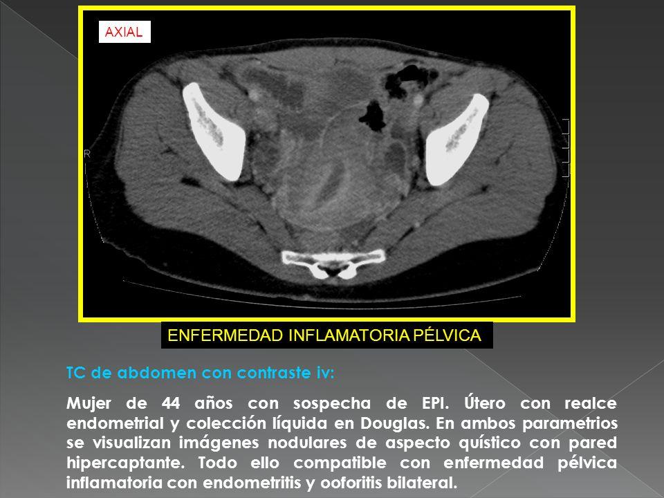 TC de abdomen con contraste iv: Mujer de 44 años con sospecha de EPI. Útero con realce endometrial y colección líquida en Douglas. En ambos parametrio